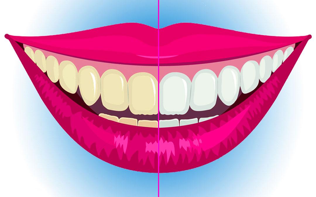 çok Kolay Diş Beyazlatma Yöntemleri Kalıcı Evde Anında Bitkisel