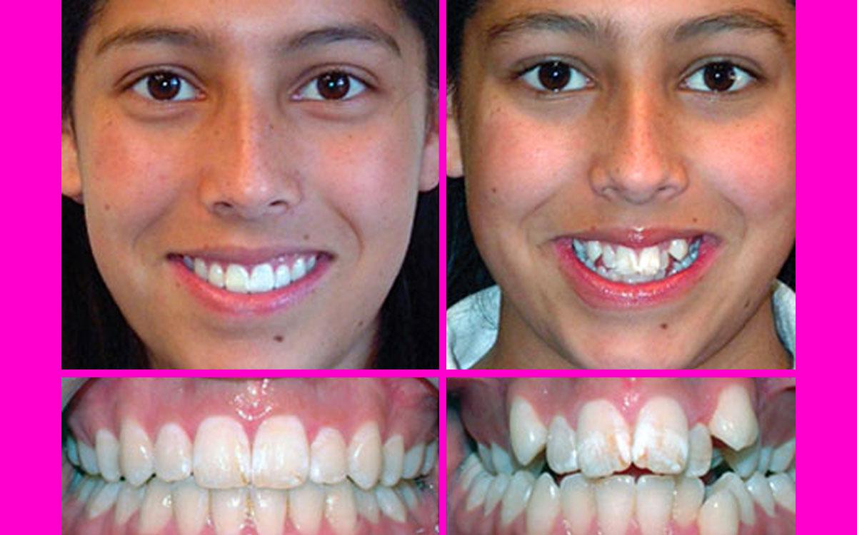 Diş Plağı Nasıl Temizlenir Kesin Çözüm Bitkisel Tedaviler
