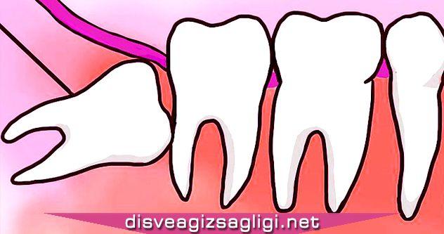 20lik diş, yamuk diş, sorunlu yirmilik diş,