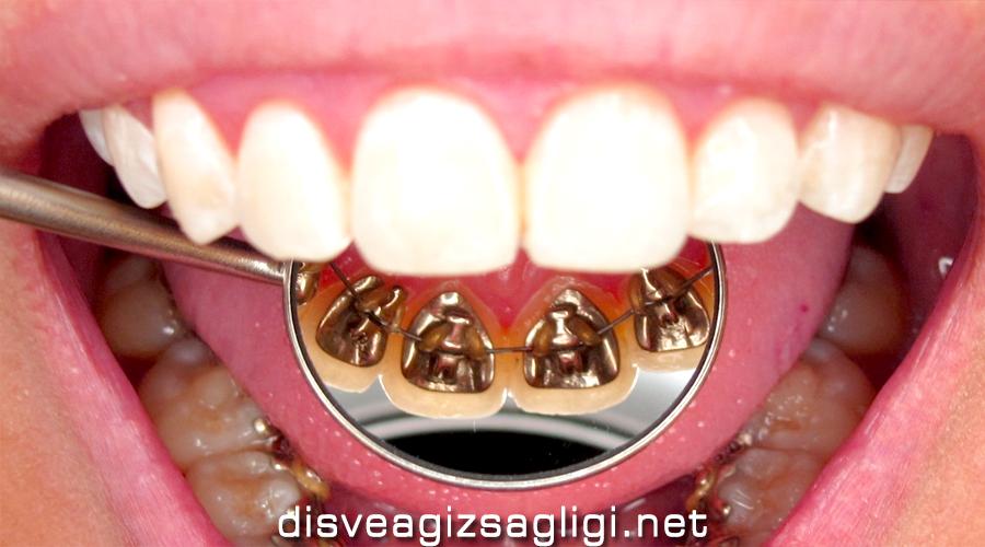 lingual, lingual ortodonti,