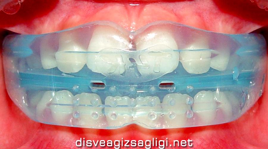 telsiz ortodonti, şeffaf plak, telsiz diş düzeltme,