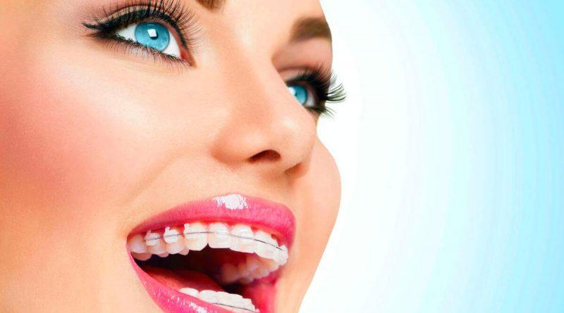 beyaz diş teli, diş teli, diş teli slider,