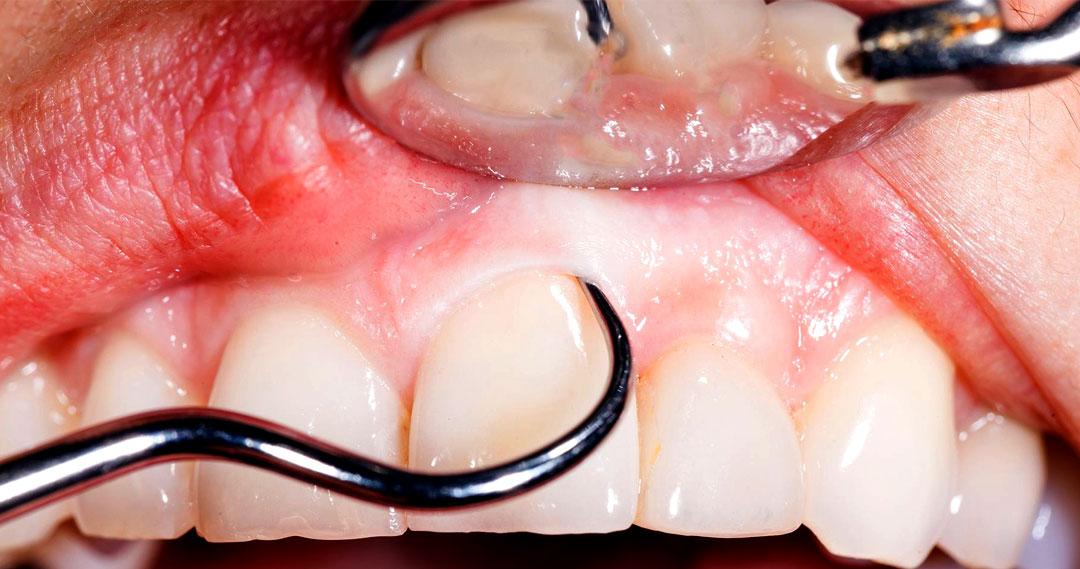diş temizliği, diş doktoru, diş doktoru diş temizliği, derin diş temizliği, dip diş temizliği,