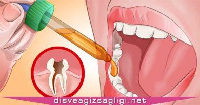 diş ağrısı, diş ağrısına ne iyi gelir, diş ağrısına iyi gelen, diş ağrısına iyi gelen sıvı,