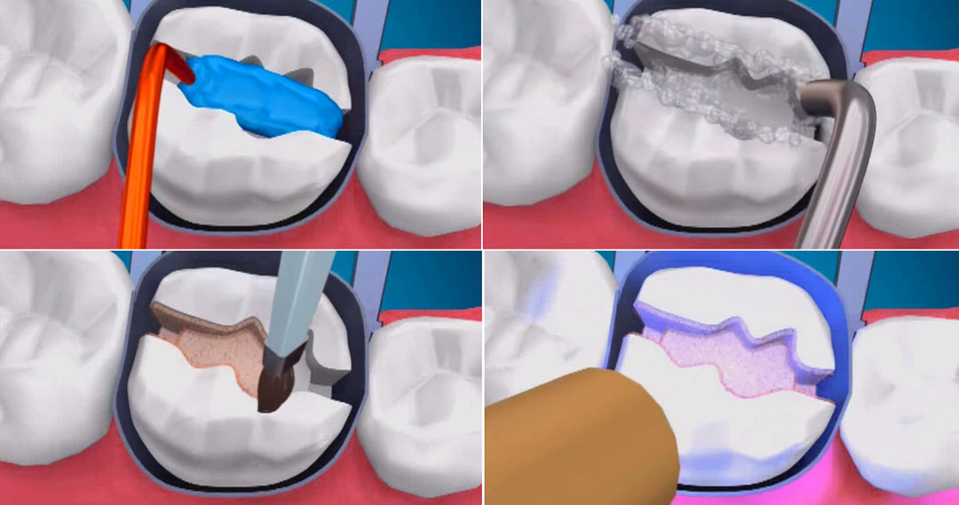 diş dolgusu, dolgu malzemeleri, diş dolgusu malzemeleri,