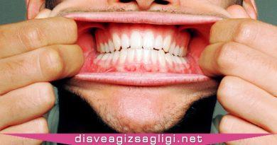diş eti, sağlıklı diş eti, diş etleri,