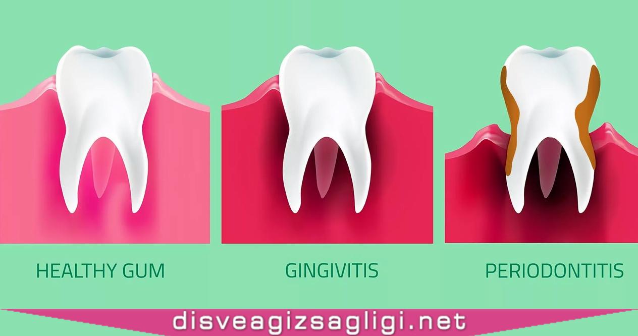 diş eti hastalığı, diş eti, diş eti rahatsızlığı,
