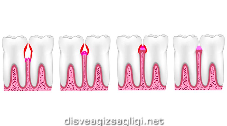 diş etleri, sorunlu diş eti, diş eti görseli, diş yapısı,