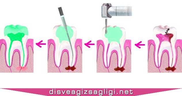 diş kaplama, diş kaplama seansları, kanal tedavisi seansları,