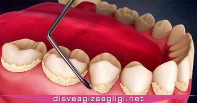 diş tartarı, diş tartarı resmi, diş tartarı simülasyon,