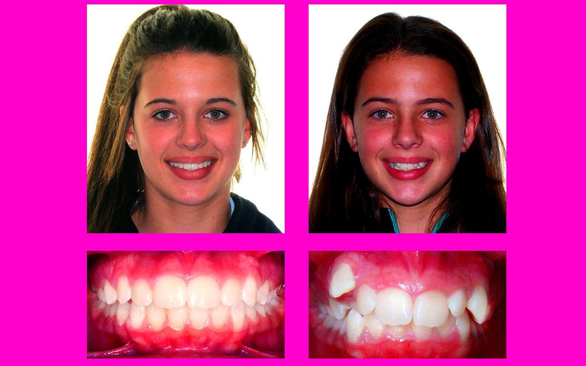 diş teli güzel kız, diş teli kullanan güzel kız, diş teli tedavi öncesi ve sonrası resimli,i