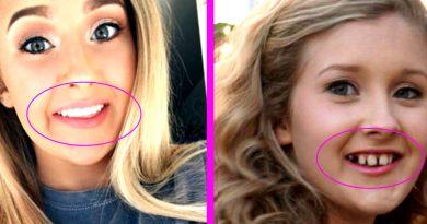 diş teli, diş teli öncesi sonrası, diş teli güzellik,