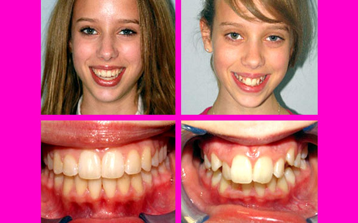 diş teli ile inanılmaz değişim, diş teli takıldıktan sonra düzelme,