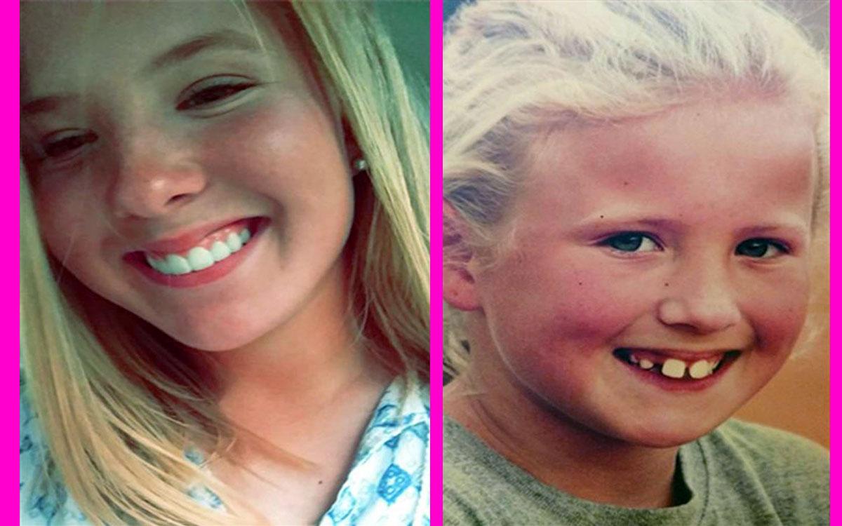 diş teli öncesi, diş teli sonrası,diş teli çocuk,