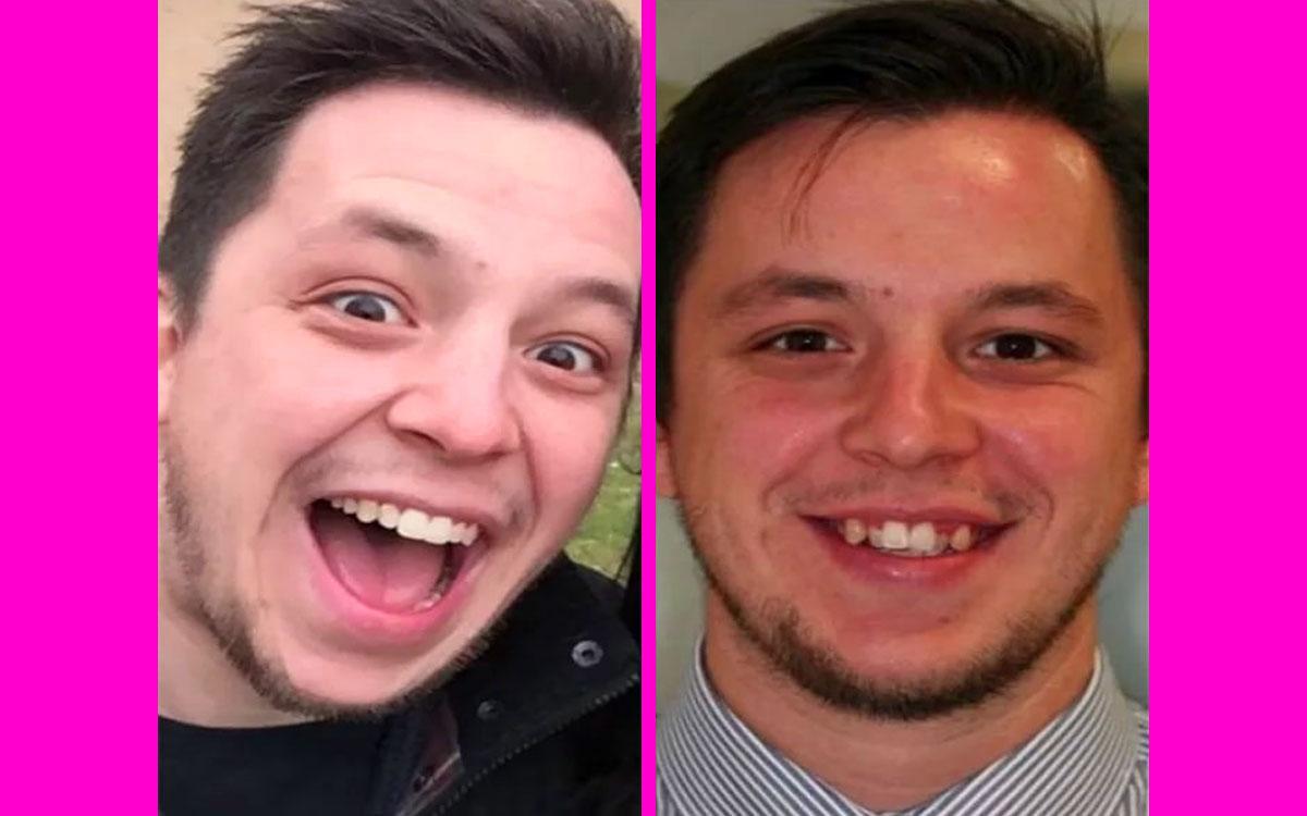 diş teli öncesi ve sonrası, diş teli takan erkek,