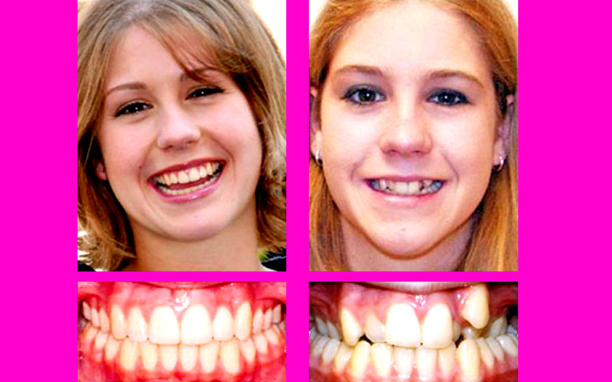 diş teli öncesi, diş teli sonrası, diş teli öncesi ve sonrası,