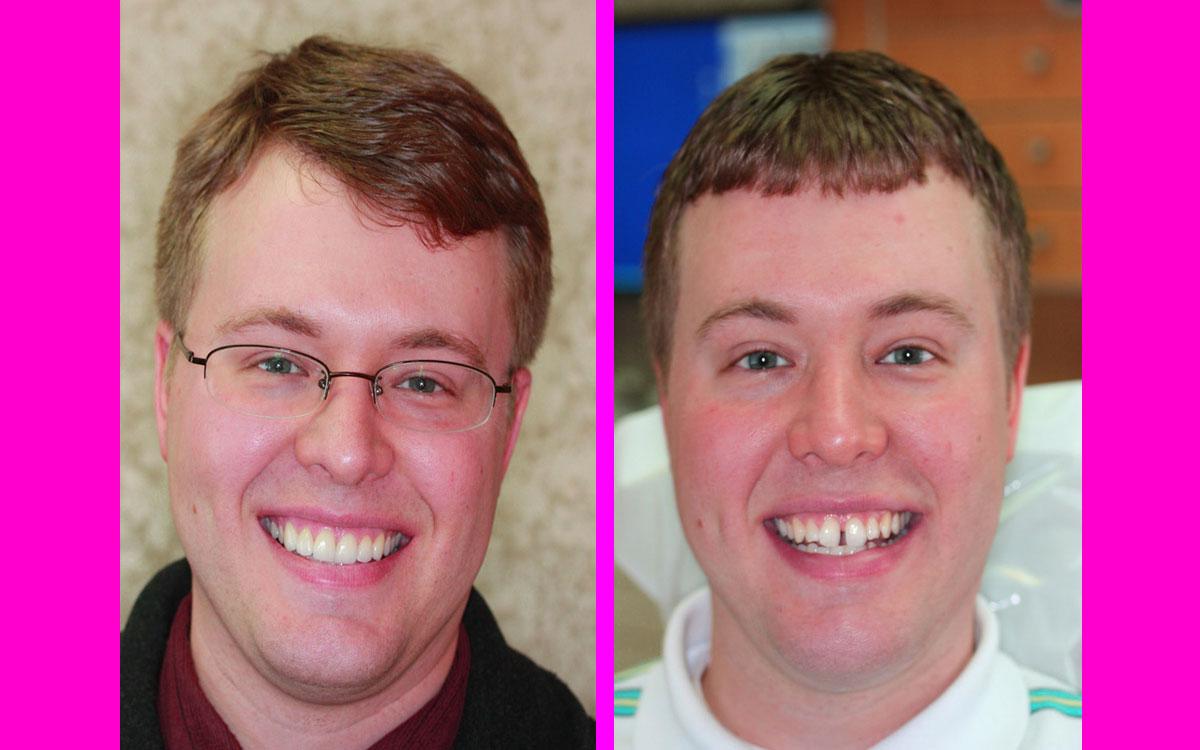 diş teli öncesi, diş teli ile düzelen dişler, diş teli ilk 1 ay,