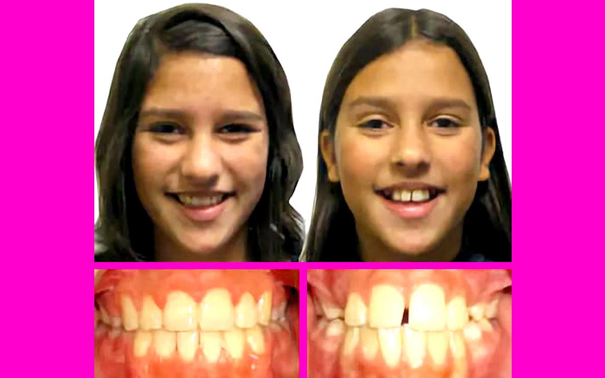 diş teli çocuk, diş teli ilk 1 ay, diş teli resimleri,