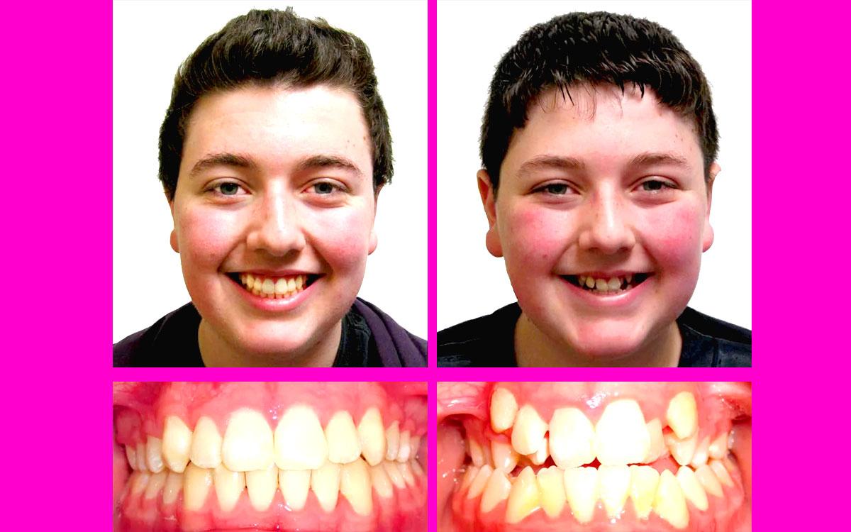 diş teli taktıranlar, diş teli yorum, diş teli resim,