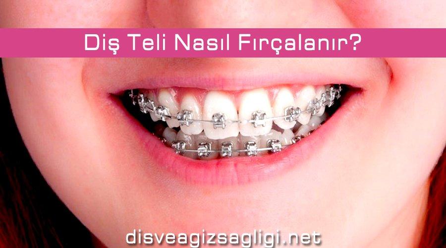 diş teli nasıl fırçalanır, diş teli, diş teli temizliği,