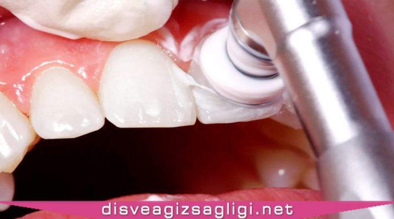 diş temizletme, diş temizleme, makine ile diş temizleme,