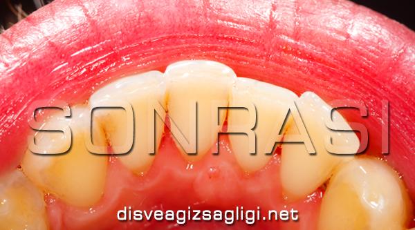 diş tartarı temizliği, diş taşı temizliği, diş temizliği sonrası,