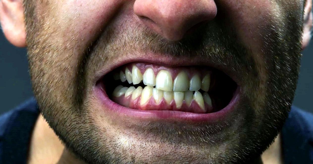 diş sıkma, diş sıkan insan, dişlerini sıkan insan,