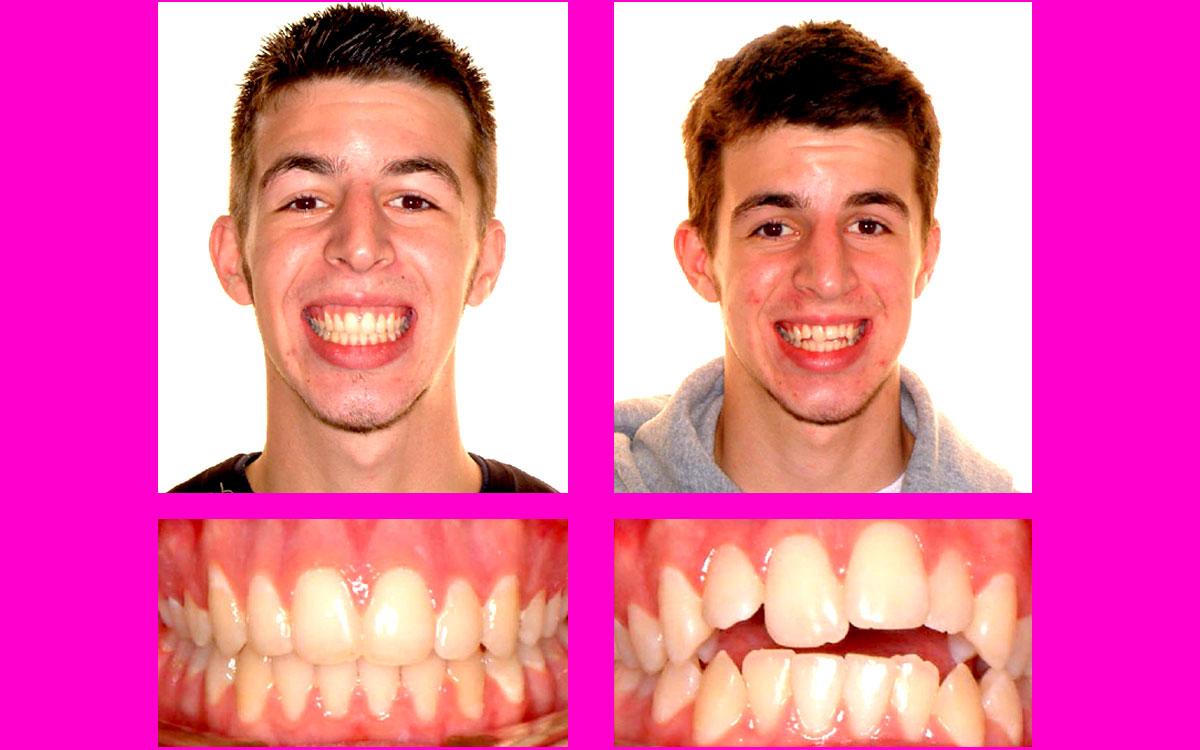 düzgün diş teli, diş teli resimli,