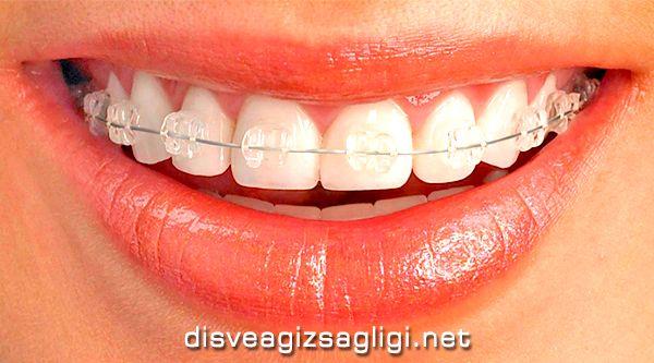 estetik braketli ortodonti, estetik ortodonti, braketli diş teli,
