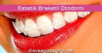 estetik diş teli, estetik braket, güzel diş teli, braketli diş teli,