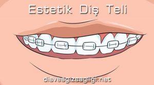 estetik diş teli, bizli diş teli, zirkonyum diş teli,