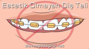 estetik olmayan diş teli, kötü diş teli, çirkin diş teli,
