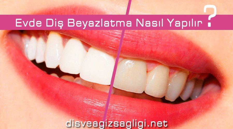 diş beyazlatma, evde diş beyazlatma,