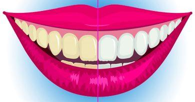 diş beyazlatma, kısa sürede diş beyazlatma yöntemleri, diş beyazlatmak, evde diş beyazlatma,
