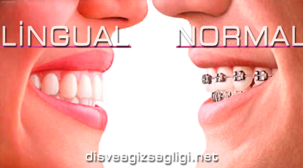 gizli diş teli, önce sonra diş teli, görünmeyen diş teli,