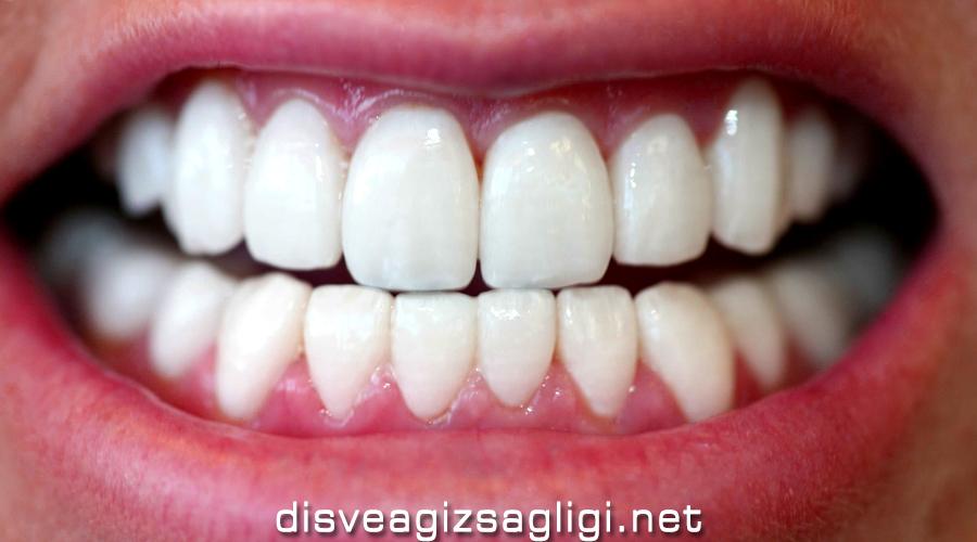 fastbraces, hızlı Ortodontik tedavi,