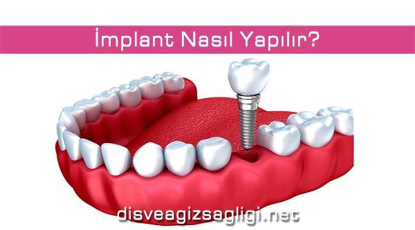 implant, implant görseli, diş görseli