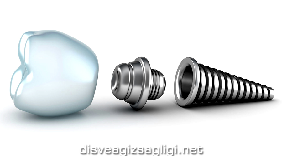 implant, implant diş, implant örnek,