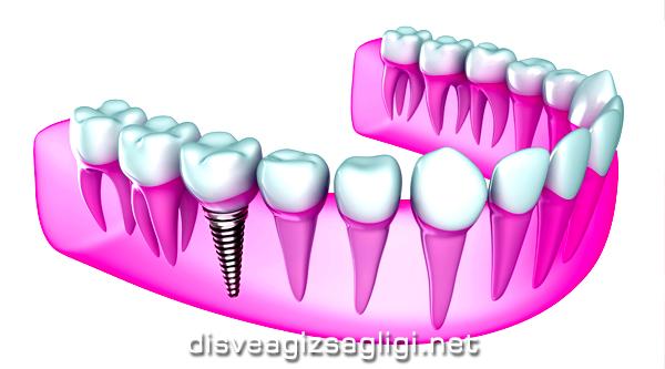 hd implant, yüksek çözünürlük diş, yapay diş,