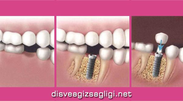 implant, implant nasıl yapılır, implant fotoğrafı,
