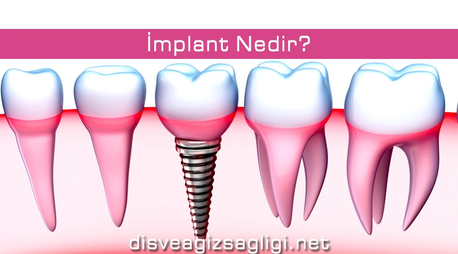 implant, implant vida, titanyum implant,