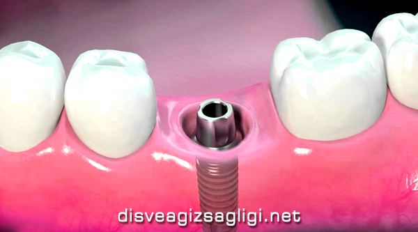 implant, implant nedir, implant resmi,