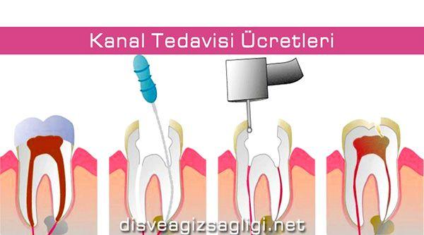kanal tedavisi, diş kanalı, kanal tedavisi ücretleri,