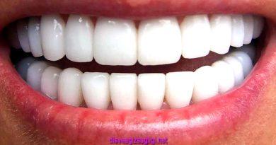 kaplama diş, diş kaplama, beyaz diş kaplama, bembeyaz dişler,