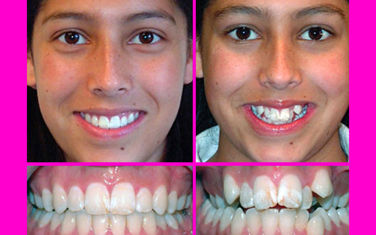 kısa sürede diş teli, diş teli ilk 1 ay, ortodontik tedavi öncesi ve sonrası resimli,
