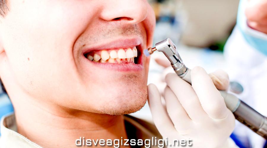 klinikte diş temizletme, diş temizliği, dişleri temizletme, diş temizletmenin zararları,