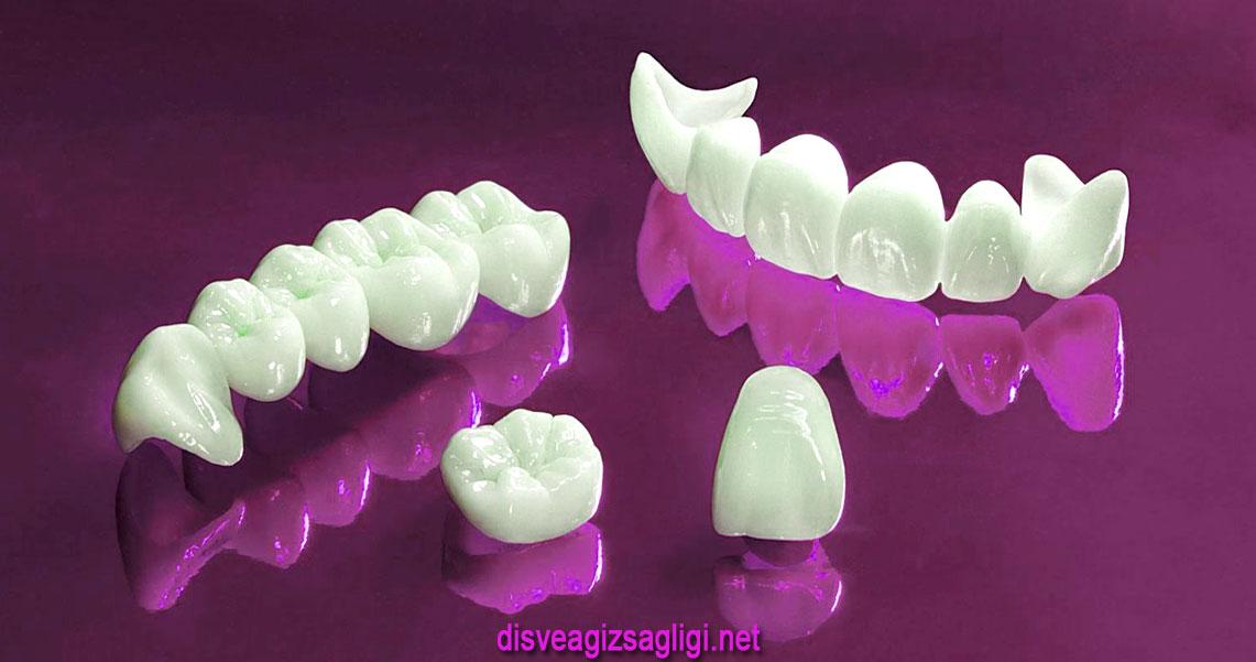 kron, kuron, kron diş kaplama, kuron diş kaplama, beyaz diş kaplama,