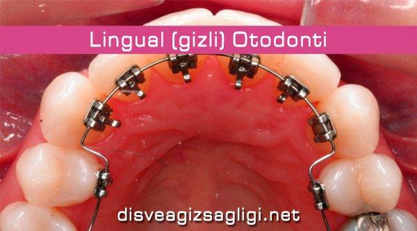 lingual, lingual ortodonti, gizli diş teli,