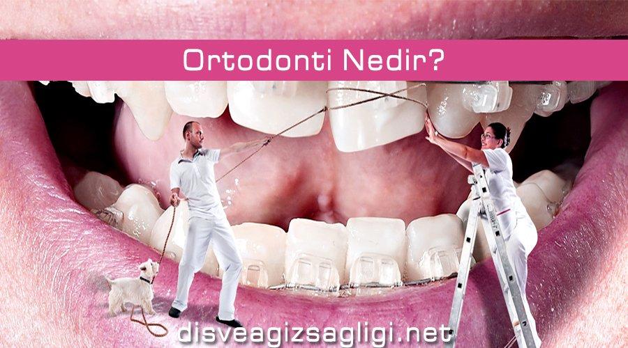 ortodonti, ortodonti nedir, ortodonti görseli,