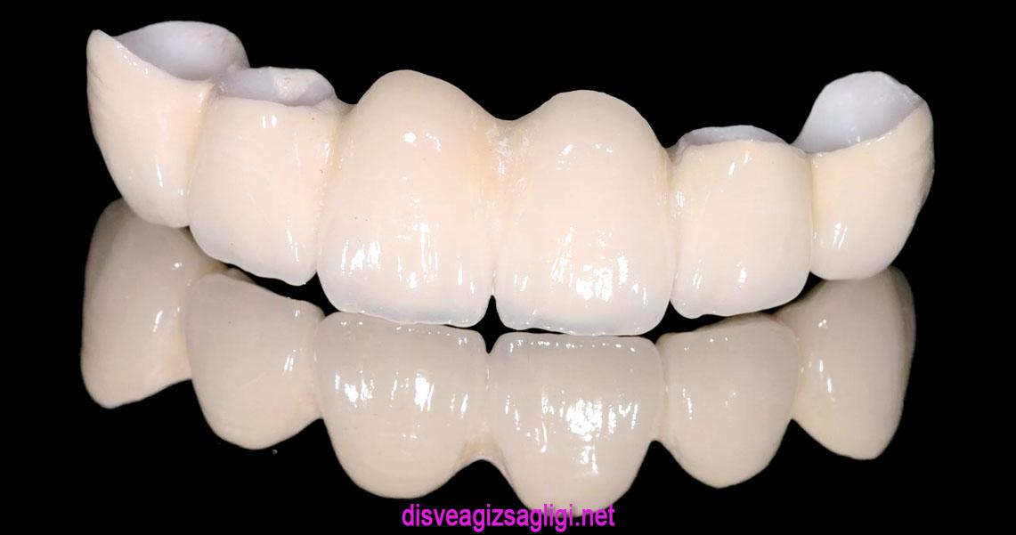 porselen diş, porselen kaplama, diş kaplaması,